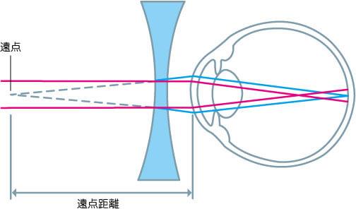 近視状態のイメージ図